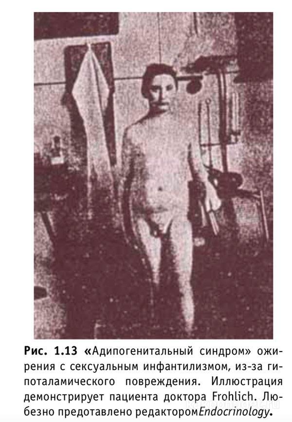 адипогенитальный синдром