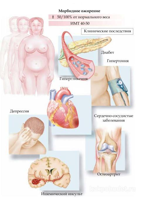 Картинки последствия ожирения