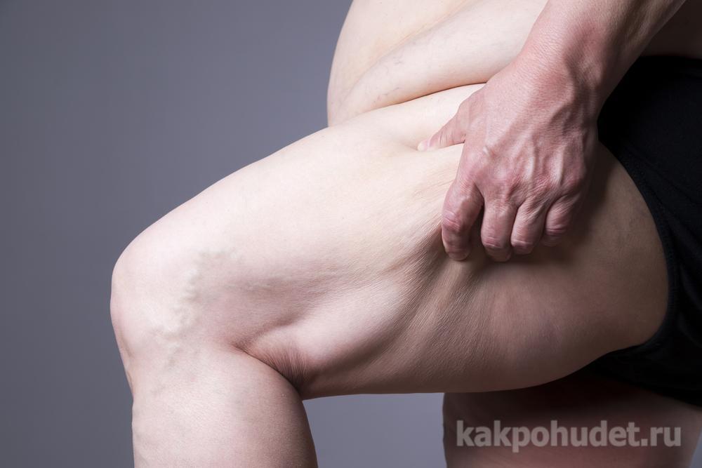 Диагностика ожирения методики