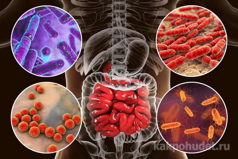 Приведите в порядок свою кишечную микрофлору
