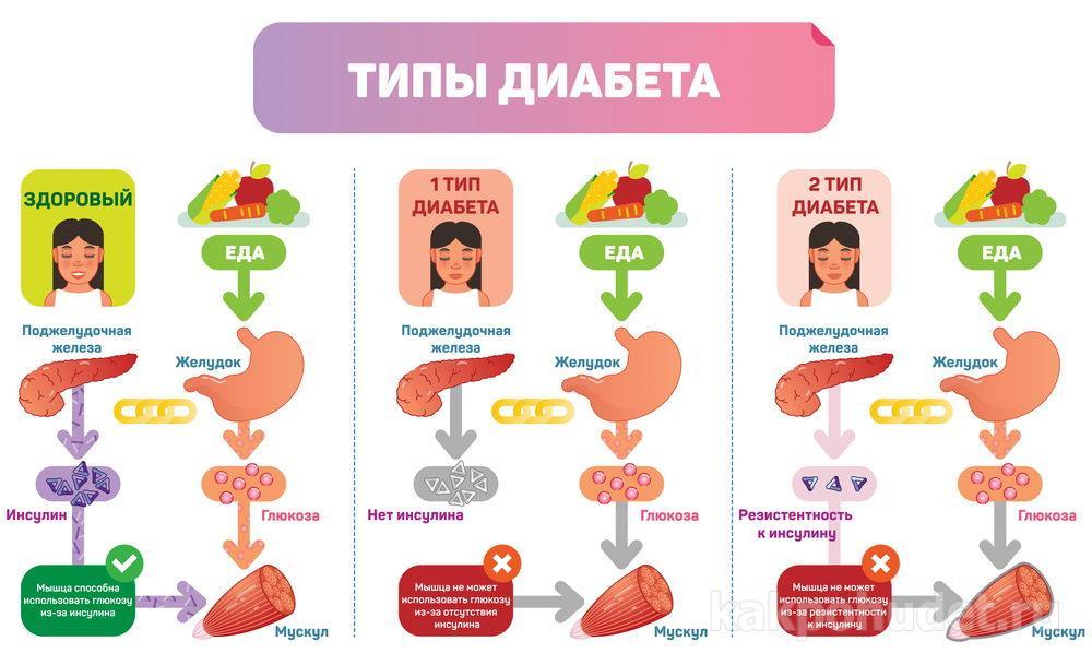 Похудение и поддержание веса при диабете
