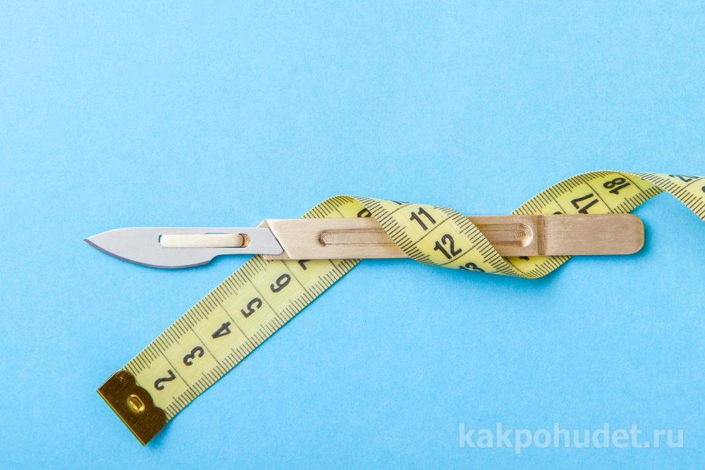 Хирургия в ряду других способов лечения ожирения