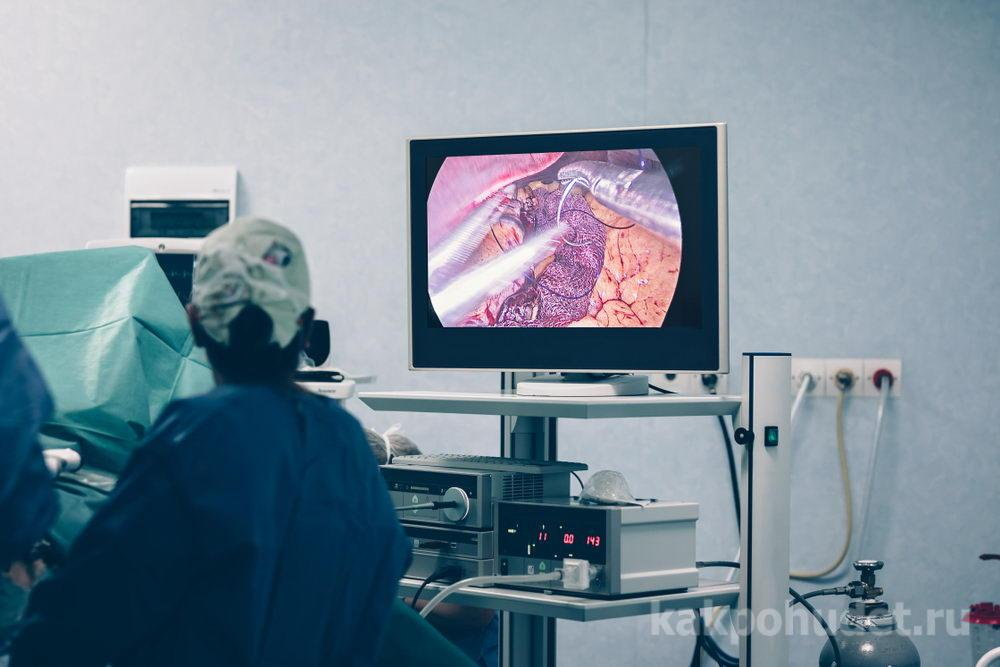 Методика хирургического подхода к снижению веса