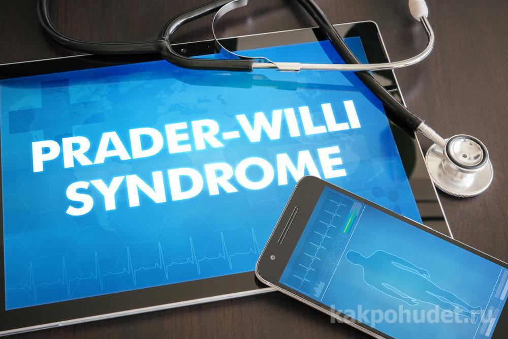 Заболевания, вызывающие ожирение - синдром Прадера-Вилли
