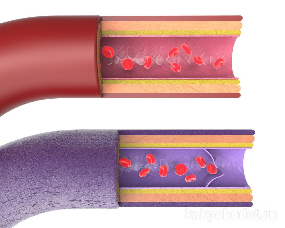 Как метформин помогает похудеть