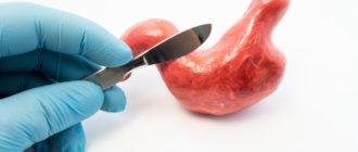 Операция на желудке это простое и быстрое решение