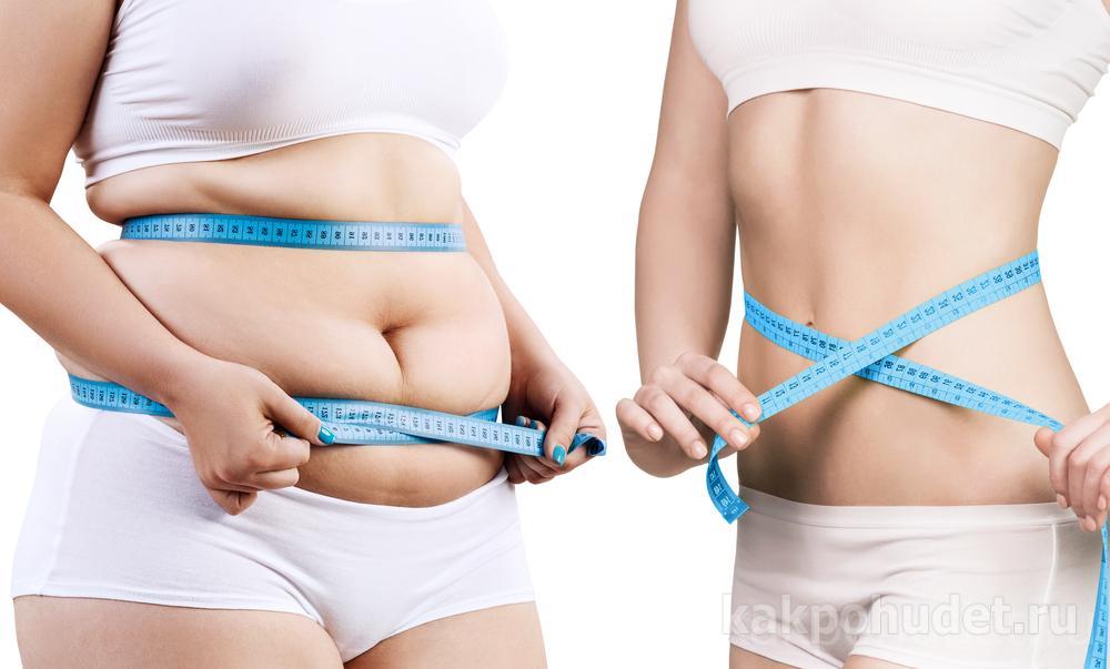 Липосакция позволяет навсегда распрощаться с жиром?